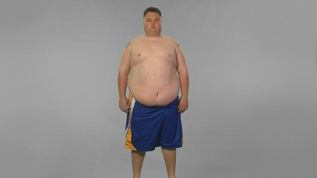 Dj hi tek weight loss surgery gave